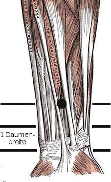 Lokalisation von Pc-6; als Vorlage dient ein Bild aus 'Gray's Anatomy of the Human body, 1918', dessen Copyright abgelaufen ist. Aus de.wikipedia.org